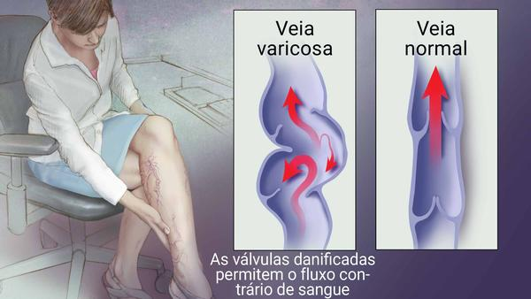 aranha de cirurgia a laser veias pernas
